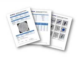 CIX100 mikroskop rapporter og skabeloner